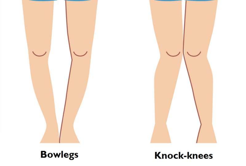 Knock Knees and Bow Legs - Len Academy