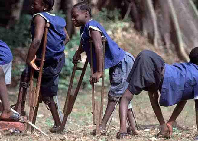 Children with polio - Len Academy