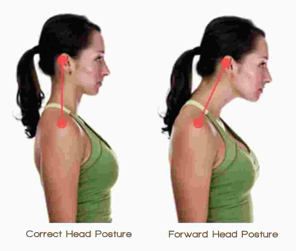 Forward Head Posture - Len Academy