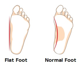 Flatfoot - Len Academy